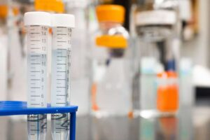 Tests from biopsies during your colonoscopy